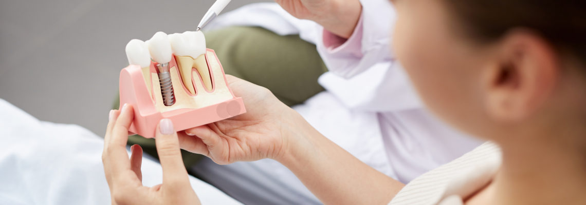 High angle view of unrecognizable young woman holding tooth model during consultation in dentists office, copy space